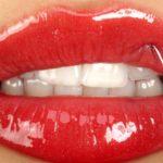 губы после увеличения
